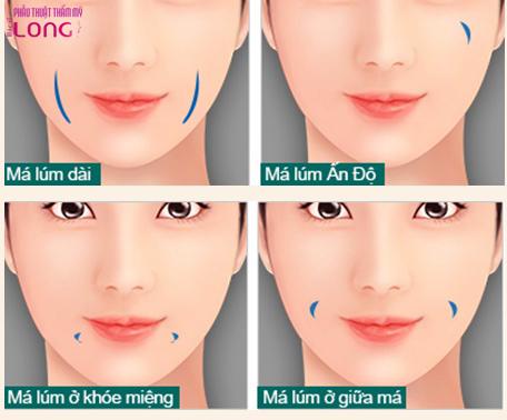 tao-ma-lum-dong-tien-co-de-lai-seo-khong