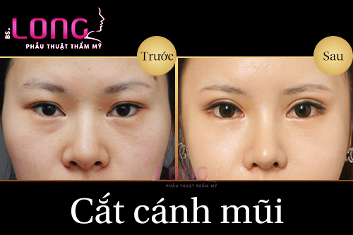 cat-canh-mui-bac-si-long-co-gi-dac-biet-1