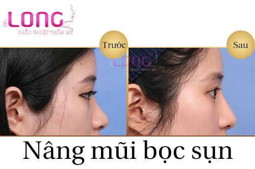 phau-thuat-nang-mui-boc-sun-nhan-tao-co-de-lai-seo-khong-1