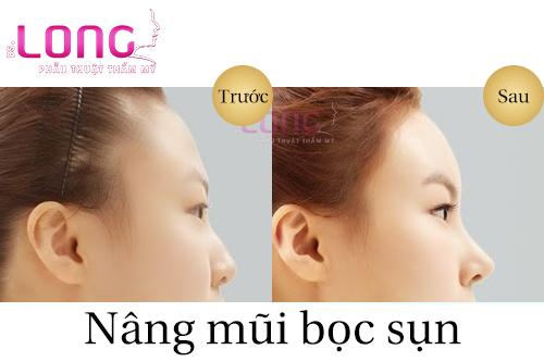 ket-qua-nang-mui-boc-sun-nhan-tao-duoc-bao-lau-1