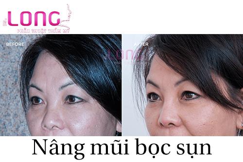 nang-mui-sun-nhan-tao-o-dau-uy-tin-va-an-toan-1