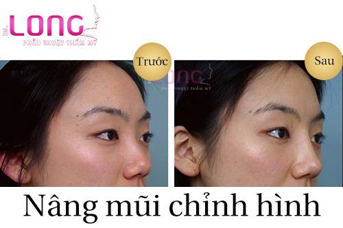 nang-mui-chinh-hinh-o-dau-dep-nhat-1