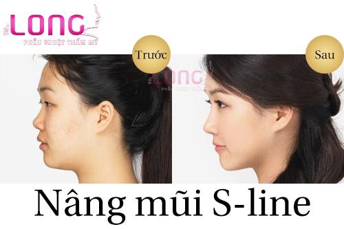 nang-mui-s-line-co-sua-duoc-mui-go-va-lech-khong-1
