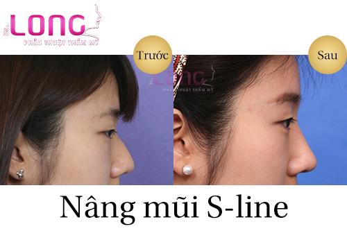 nang-mui-sline-co-an-toan-va-hieu-qua-khong-1