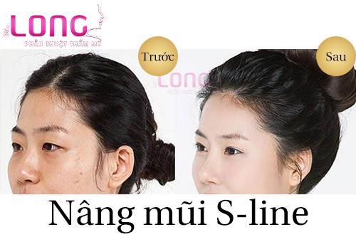 nang-mui-sline-co-anh-huong-den-xoang-mui-khong-1