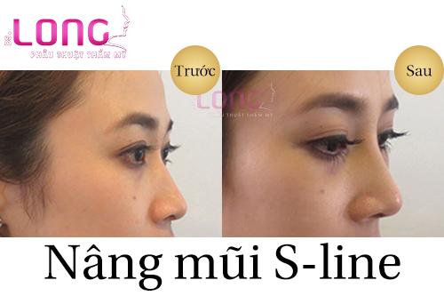 nang-mui-hong-co-nang-mui-sline-duoc-khong-1
