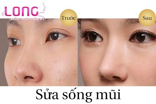 phau-thuat-sua-song-mui-cu-co-an-toan-khong-1