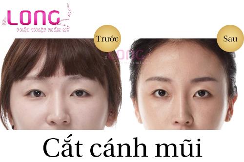 cat-canh-mui-xong-co-bi-to-lai-khong-1