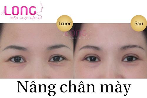 xoa-nep-nhan-mat-bang-cach-nang-chan-may-2
