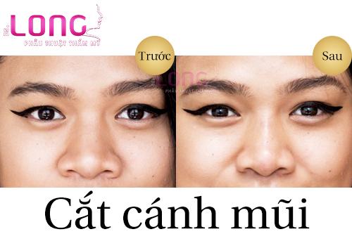 cat-canh-mui-co-sung-nhieu-khong-1