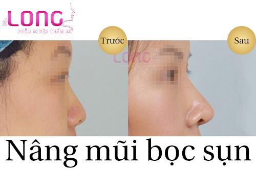 phau-thuat-nang-mui-boc-sun-nhan-tao-co-seo-khong-1