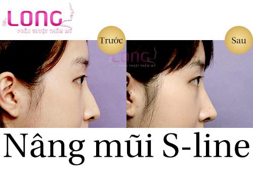 nang-mui-s-line-co-chinh-hinh-vach-ngan-duoc-khong-1