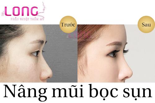 chi-phi-nang-mui-sun-nhan-tao-co-re-khong-1