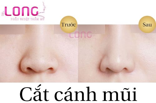 phau-thuat-cat-canh-mui-co-seo-khong-2