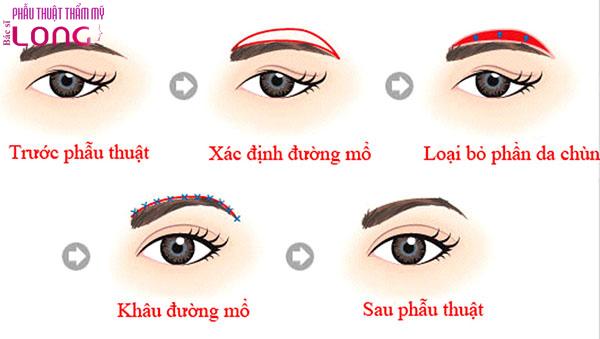 chi-phi-phau-thuat-nang-chan-may-dat-khong