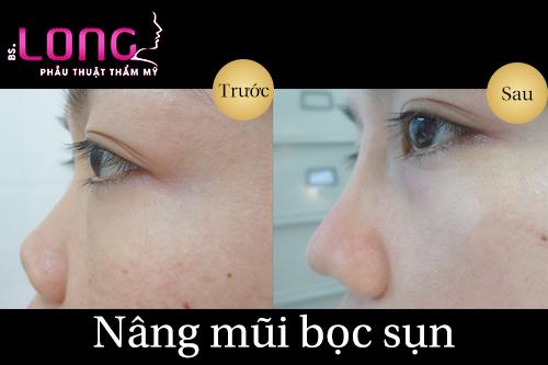nang-mui-boc-sun-vach-ngan-sline-la-gi-1