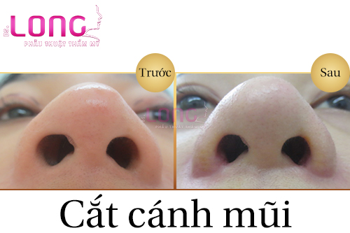 cat-canh-mui-gia-bao-nhieu-tien-1