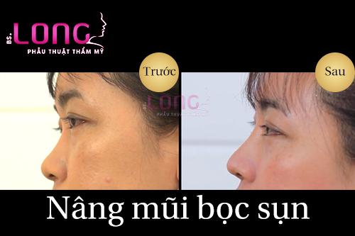 nang-mui-bang-sun-nhan-tao-an-toan-khong-1