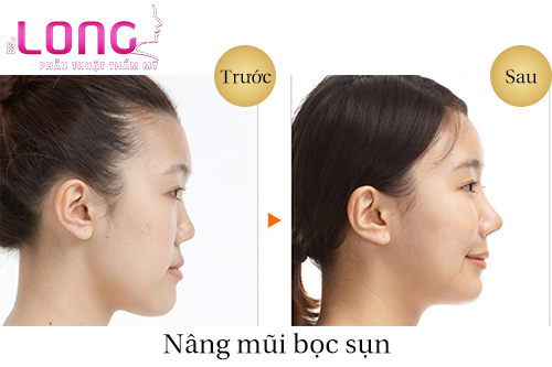nang-mui-boc-sun-nhan-tao-bao-lau-thi-lanh-1