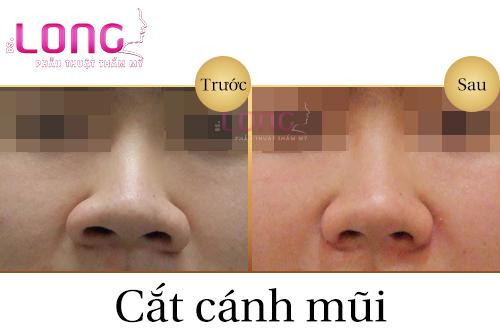 cat-canh-mui-xong-co-bi-seo-khong-1