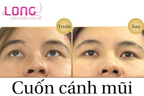 cuon-canh-mui-phau-thuat-co-an-toan-khong-1