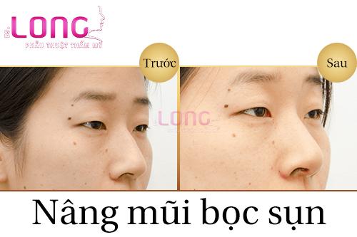 nang-mui-boc-sun-co-lay-sun-tai-khong-1