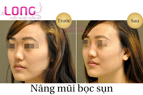 chinh-hinh-mui-bac-si-long-co-an-toan-khong-1