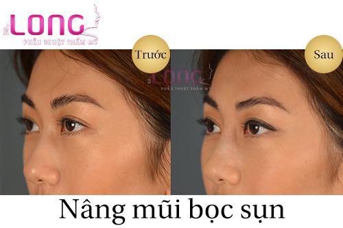 cham-soc-sau-nang-mui-boc-sun-can-nhu-the-nao-1