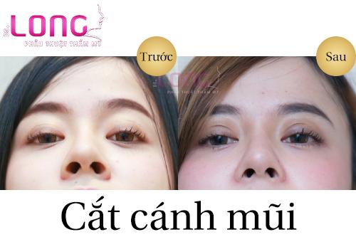 phau-thuat-cat-canh-mui-co-dau-khong-1
