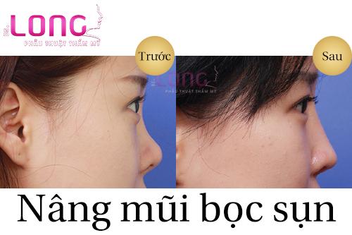 truoc-khi-nang-mui-can-luu-y-dieu-gi-1