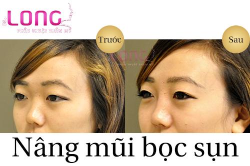 nang-mui-boc-sun-duoc-bao-lau-thi-dep-1