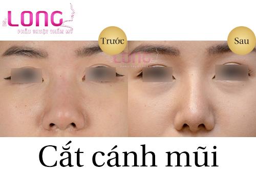 cat-canh-mui-va-cuon-canh-mui-co-gi-khac-nhau-1