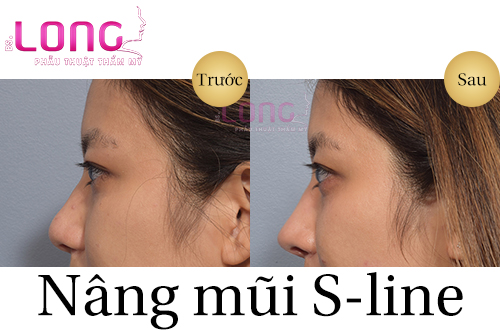 nang-mui-sline-co-phai-la-cach-nang-mui-hien-dai-nhat-1