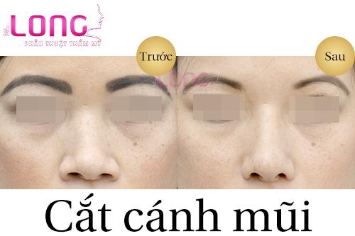 thoi-gian-cat-canh-mui-bao-lau-thi-lanh-1
