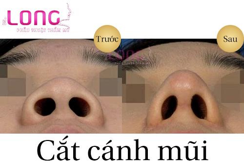 tieu-chi-lua-chon-dia-chi-cat-canh-mui-dep-1