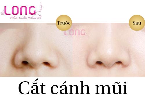 dia-chi-cat-canh-mui-an-toan-tai-tphcm-1