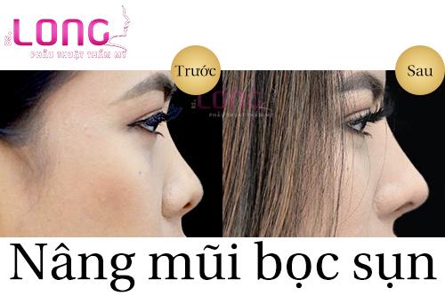 nang-mui-boc-sun-co-danh-cho-doi-tuong-bi-viem-xoang-khong-1